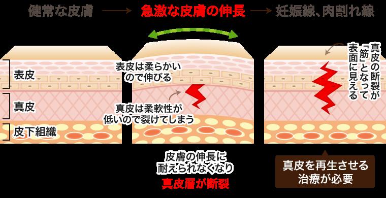 妊娠線・肉割れの原因